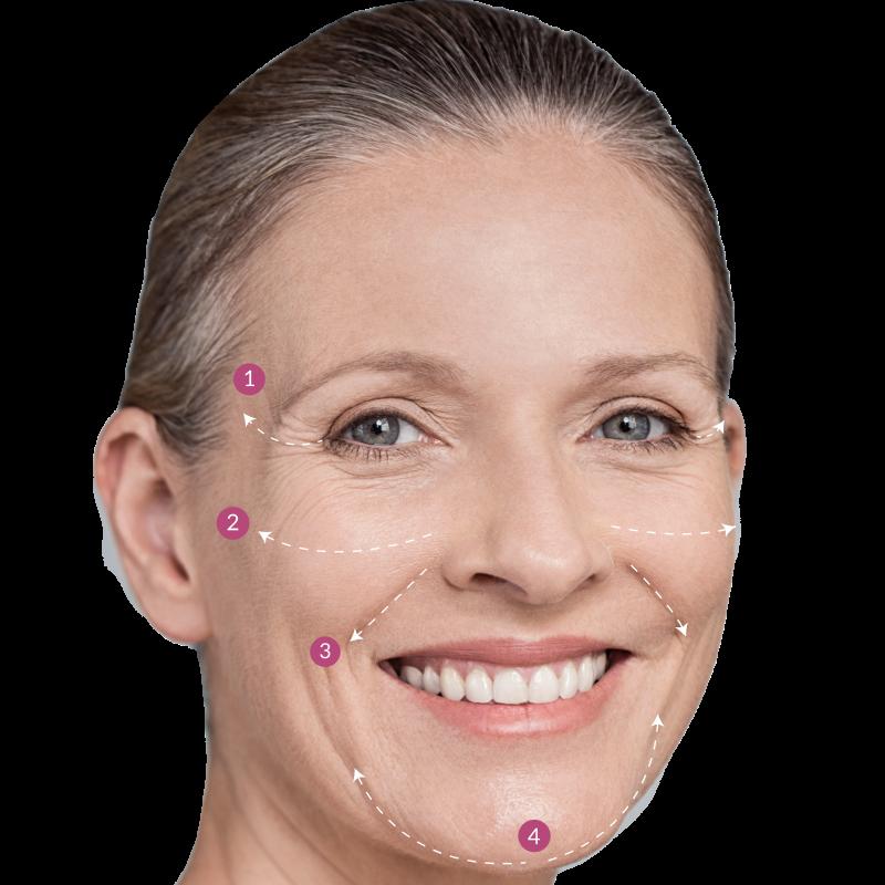 Gesichtsbehandlung und Faltenunterspritzung mit Hyaloron für reifere Haut für vollere Lippen, gegen Krähenfüße oder einer korrigierten Nasolabialfalte, gegen Stirnfalten oder Modelierung Gesichtskonturen